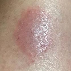 Rash after 4 weeks